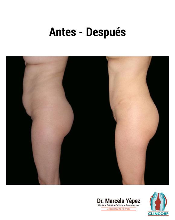 Abdominoplastia caso1