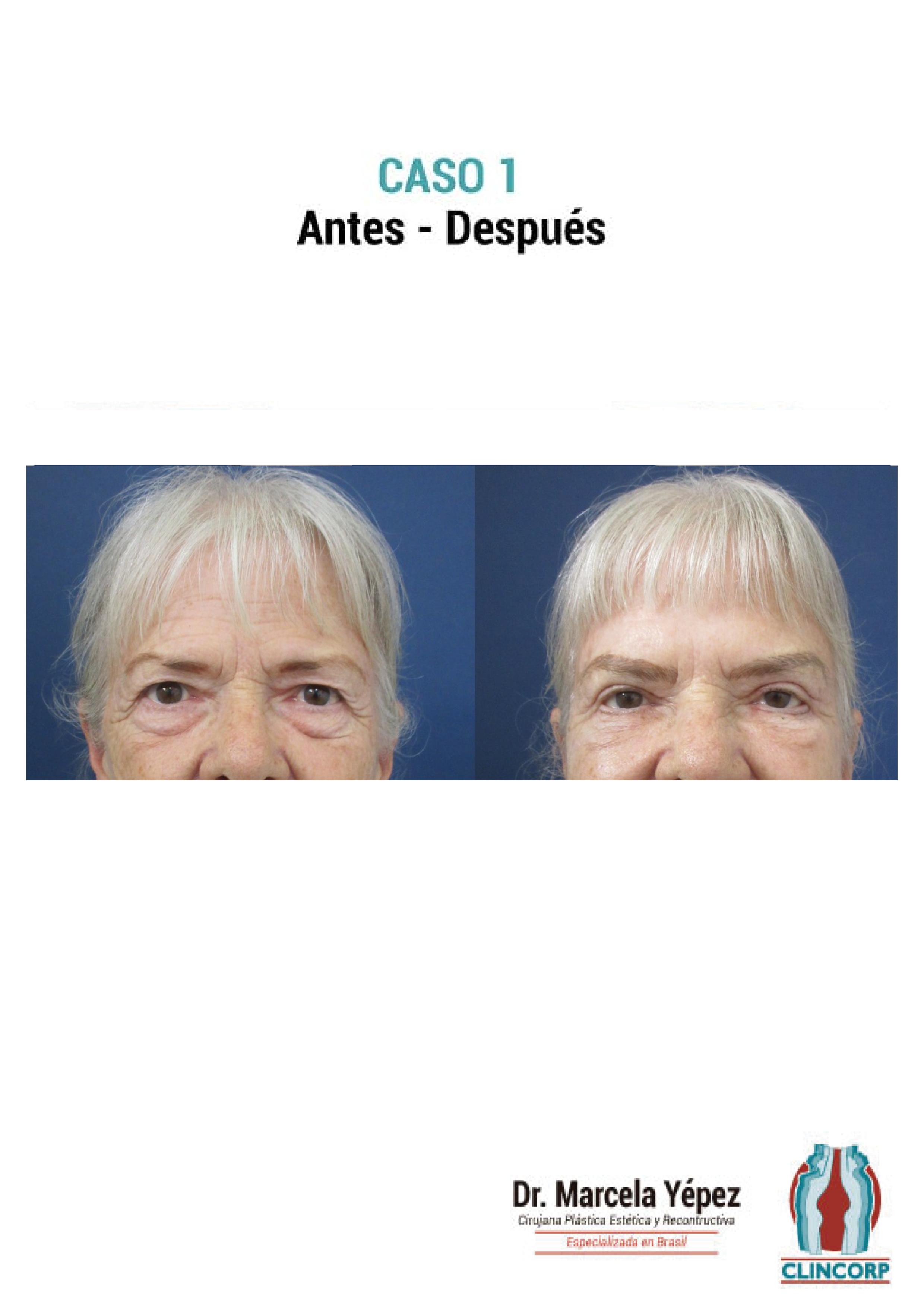 blefaroplastia-Caso1
