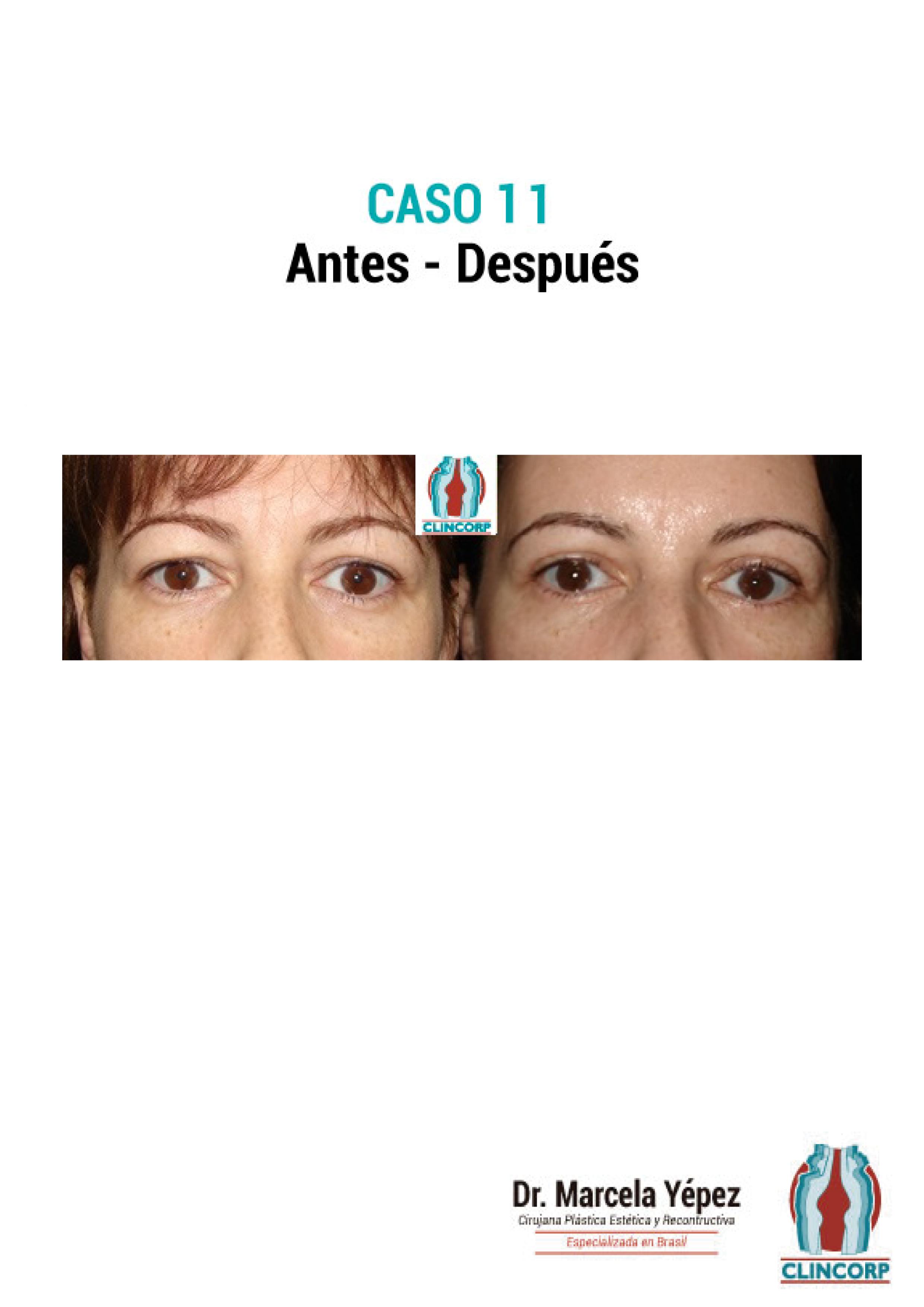 blefaroplastia-Caso11
