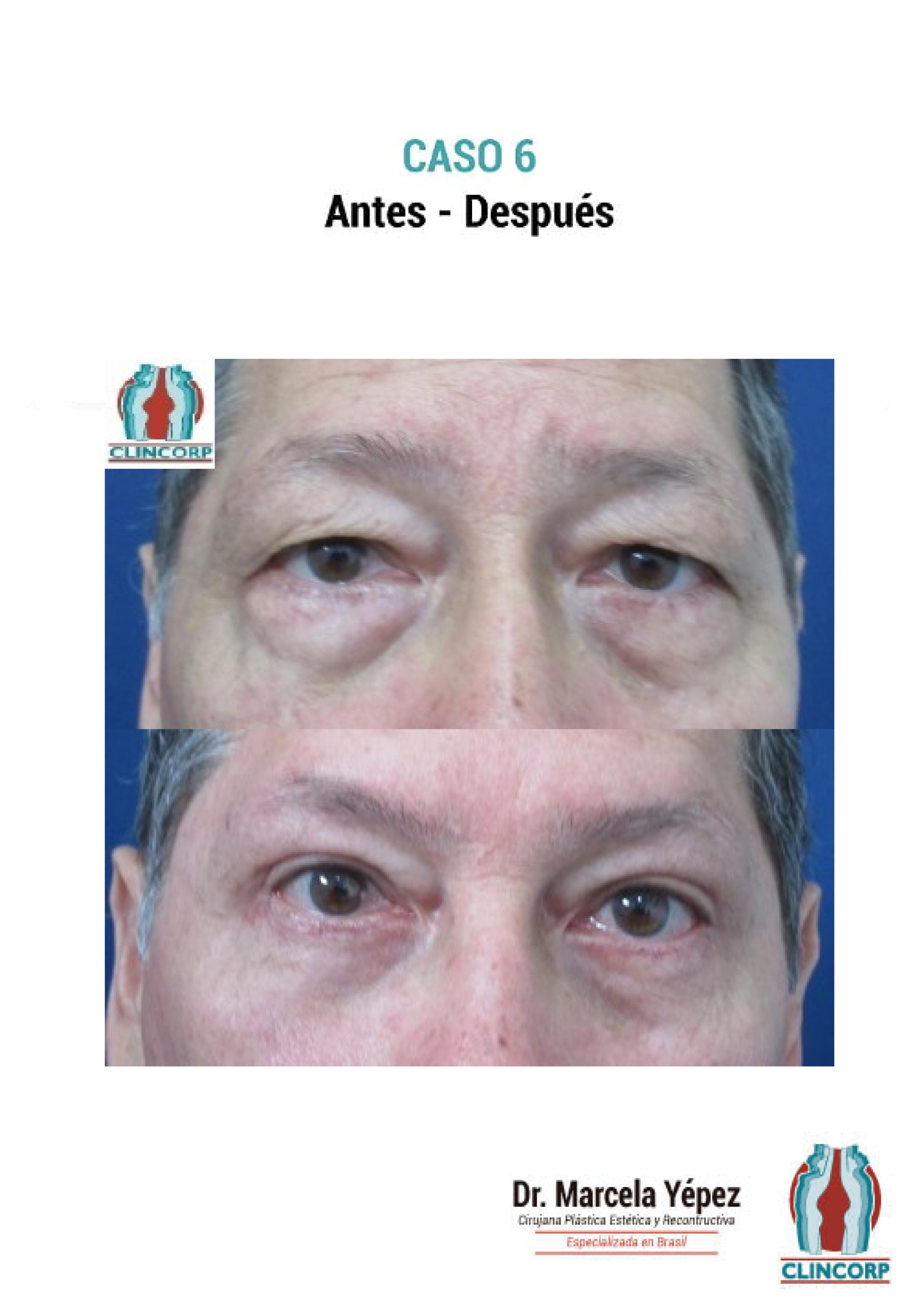 blefaroplastia-Caso6