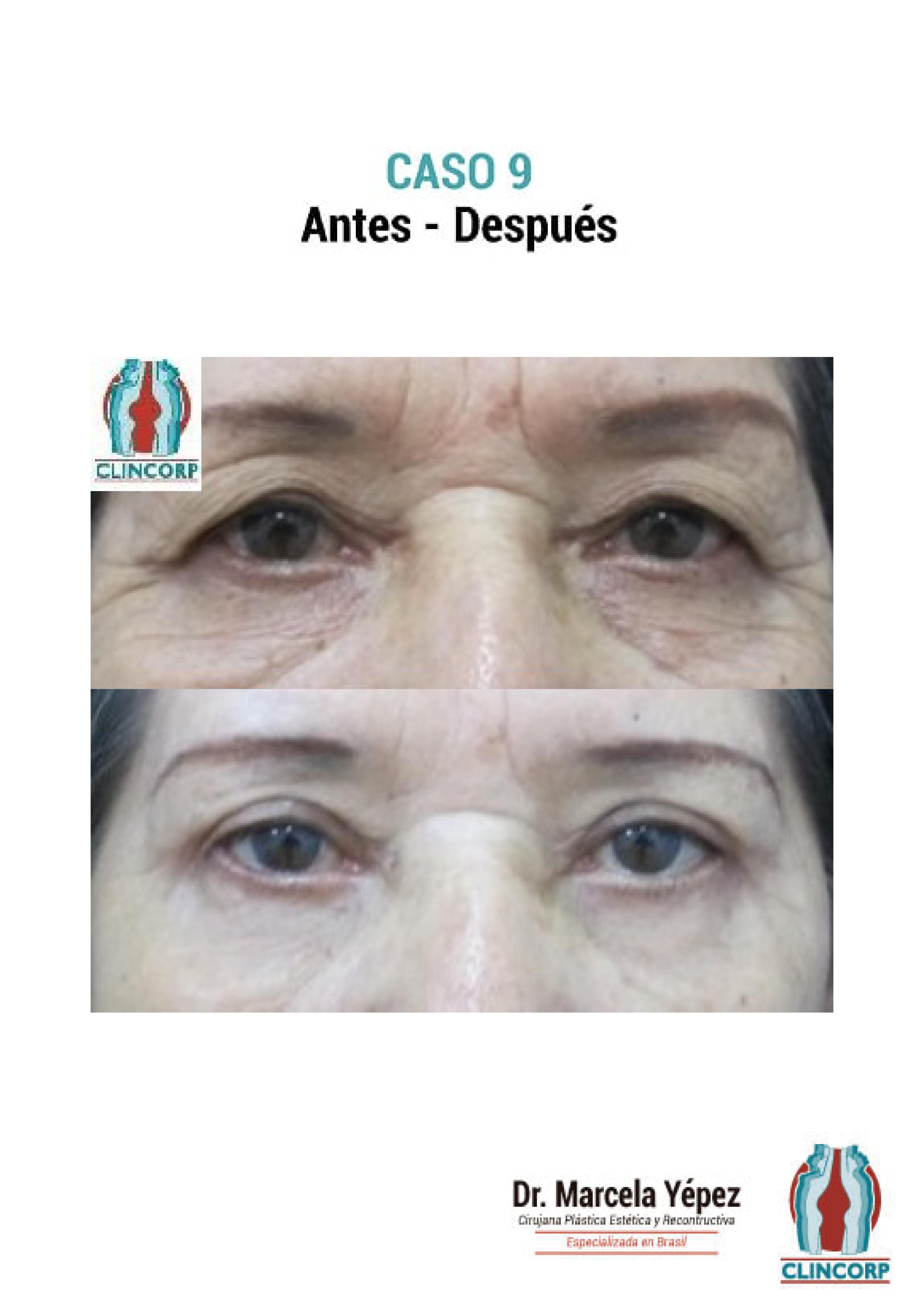 blefaroplastia-Caso9