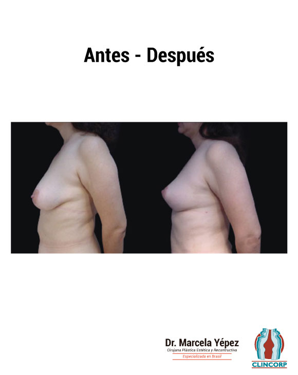 caso1_foto_dos(2)