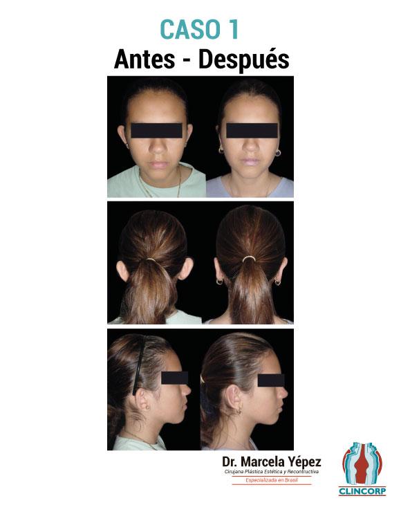 caso1_portada(1)