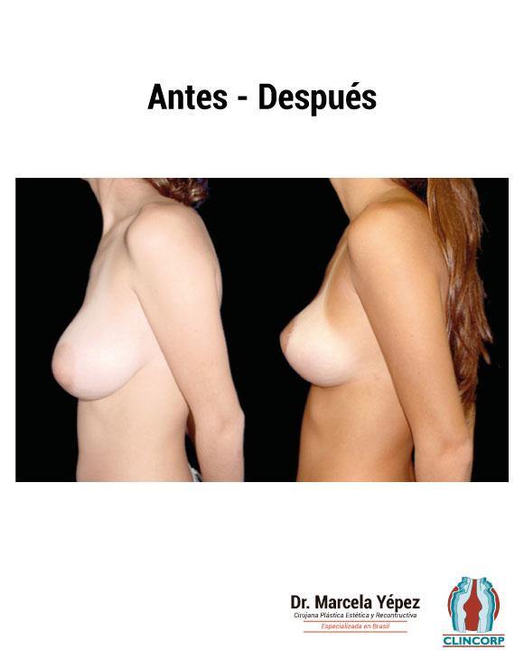 caso2_foto_dos(2)