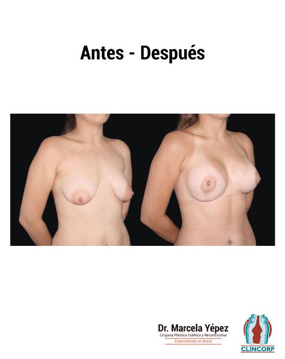 caso2_foto_dos(4)