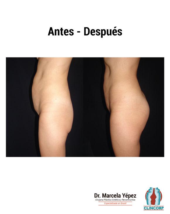 caso3_foto_dos(1)_gluteosProtesis
