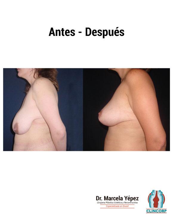 caso3_foto_dos(2)