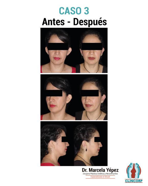 caso3_portada(1)