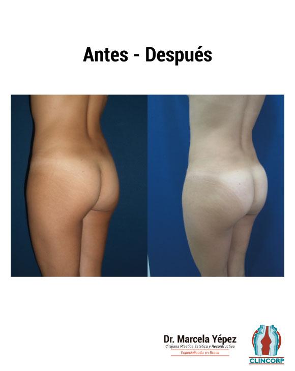 caso4_foto_dos(1)_gluteosProtesis