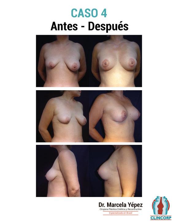 caso4_portada(2)
