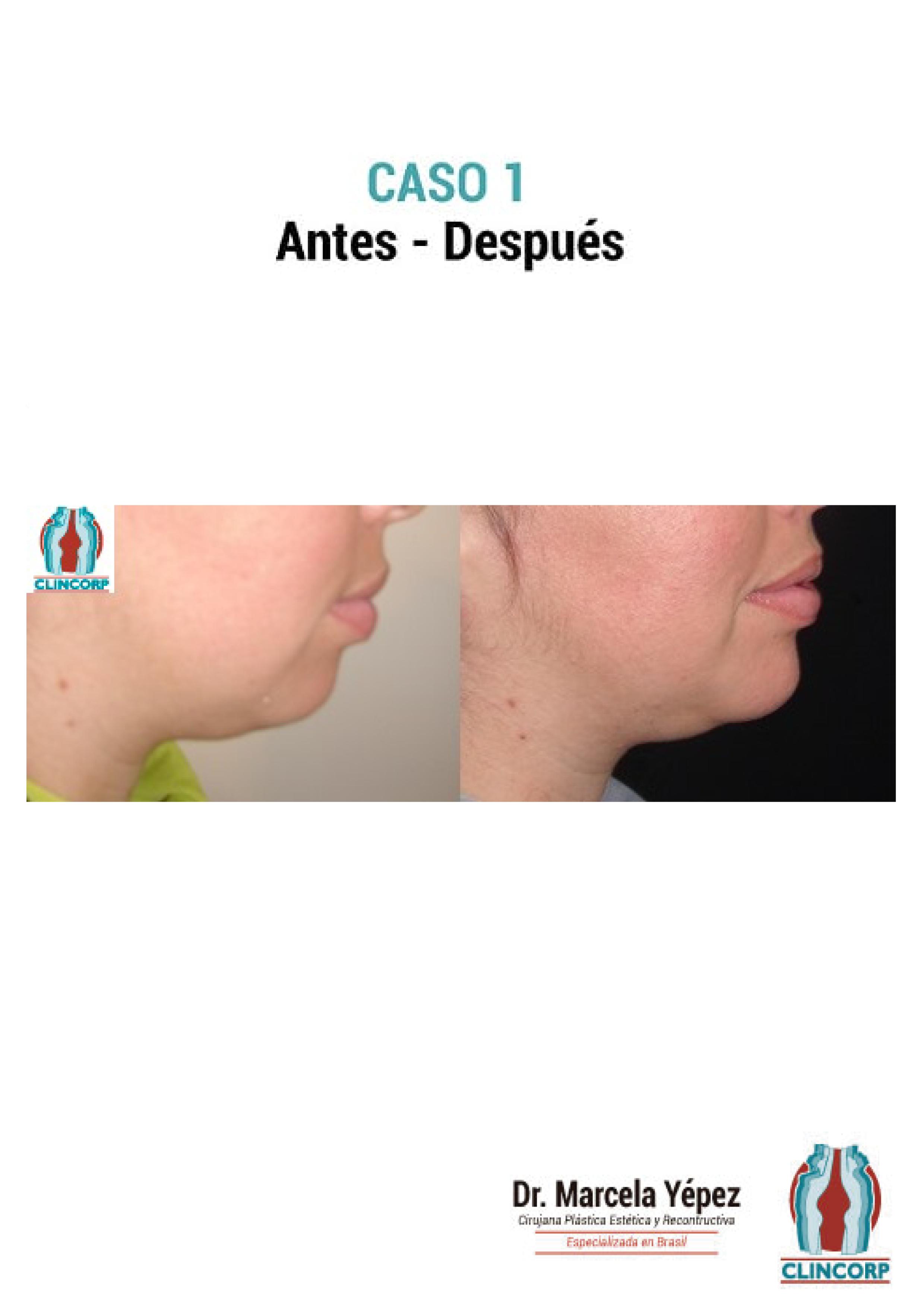 mentoplastia-Caso1