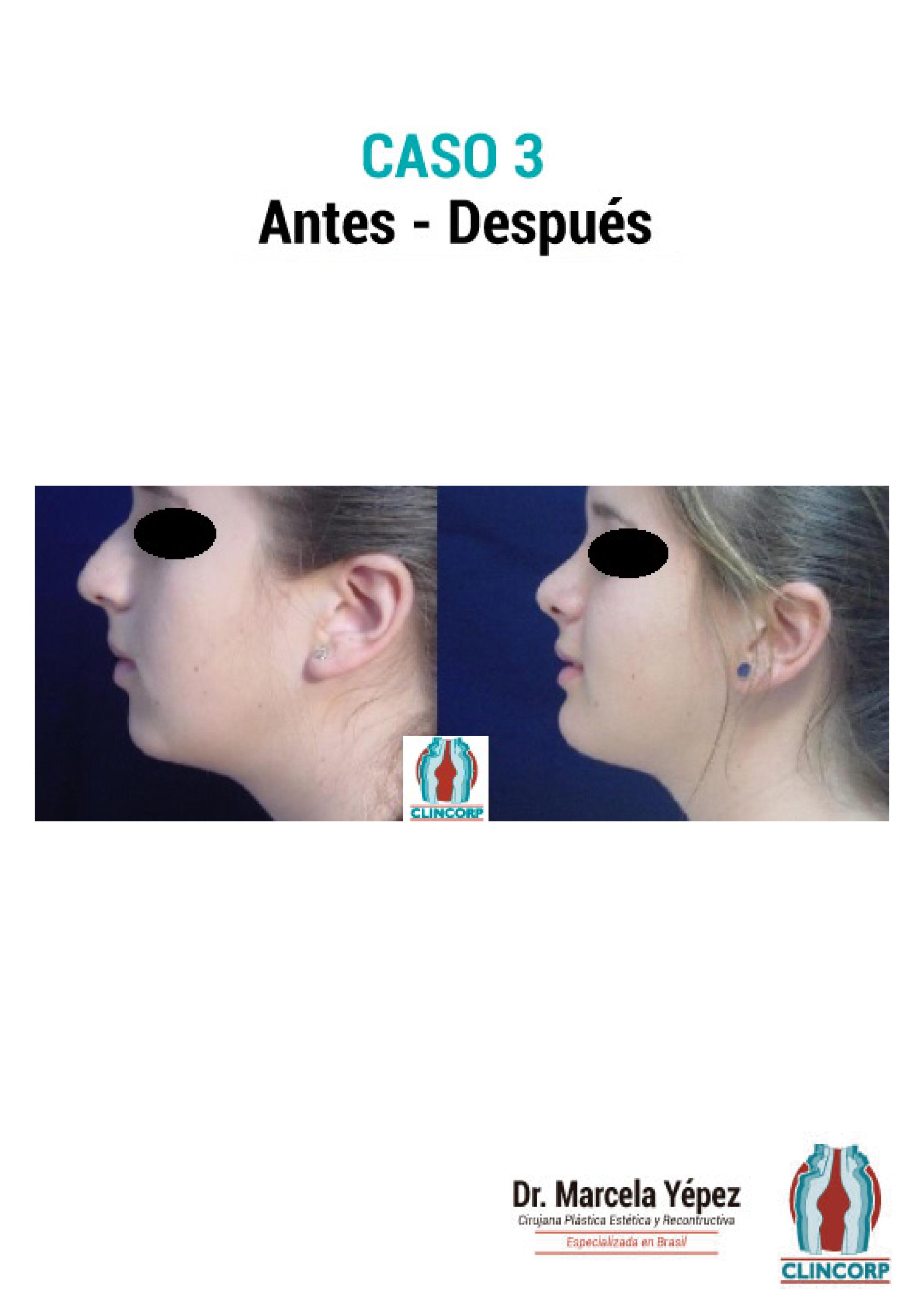 mentoplastia-Caso3
